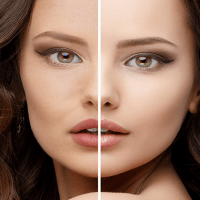 before and after xyz results collagen cream