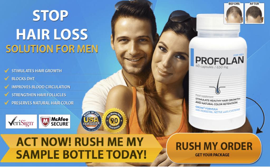 profolan stop hair loss for men