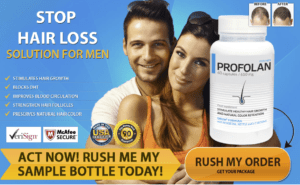 profolan stop hair loss for men