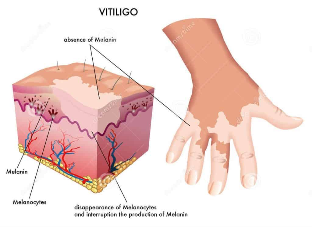 What Are The Best Way To Treat Vitiligo?
